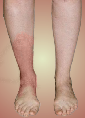 Cellulitis Echo S Webecho S Web
